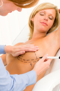 Breast Augmentation Surgery Lift | Dallas Cosmetic Plastic Surgeon