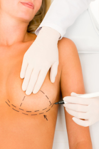 Breast Reduction Insurance Coverage | Dallas Plastic Surgery