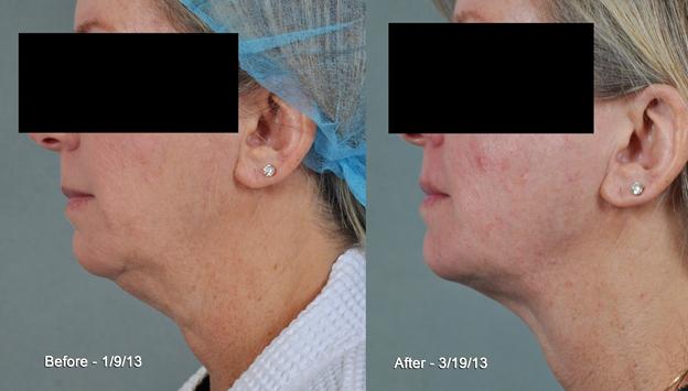 ThermiRF Non Surgical Neck Rejuvenation Dallas   Plano TX