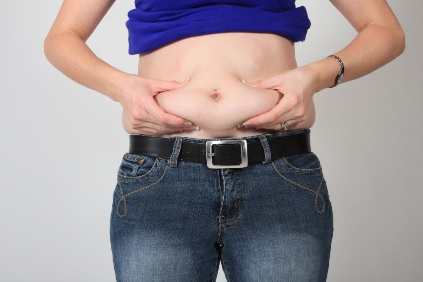 Tummy Tuck Plastic Surgery Candidate Dallas   Plano Frisco