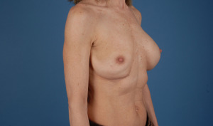 Do you have a ruptured breast implant? bradleyhubbardmd.com can help!