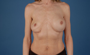 Revision Surgery for ruptured breast implants can be done by bradleyhubbardmd.com