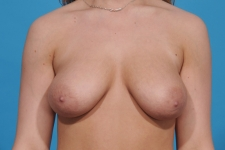 Breast-lift-augmentation-before-picture-dallas