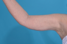 arm-lift-after-picture-plano