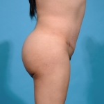 brasilian-butt-lift-tummy-tuck-after-lateral-picture-dallas