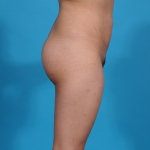 brasilian-butt-lift-tummy-tuck-before-lateral-picture