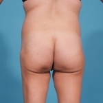 brasilian-butt-lift-tummy-tuck-before-picture