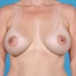 breast-augmentation-after