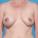 breast-augmentation-before