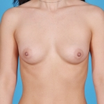 breast-augmentation-before-picture-dallas