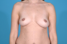 breast-augmentation-before-picture-plano