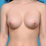 breast-augmentation-picture-dallas