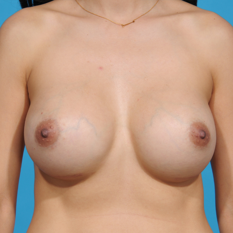 Breast and Body Center of Austin - Austin, TX
