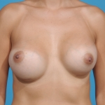 breast-augmentation-revision-before-picture-plano