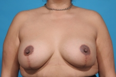 breast-lift-augmentation-after-picture-dallas