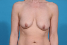 breast-lift-augmentation-before-picture