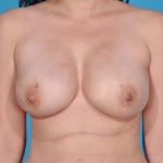 breast-reconstruction-revision-after-pictures-dallas