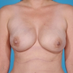 breast-reconstruction-revision-before-pictures-plano