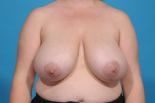breast-reduction-Before- picture- frontview