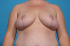 breast-reduction-after-picture-dallas
