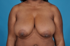 breast-reduction-before-picture-dallas