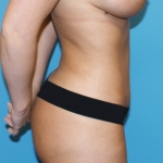 liposuction-after-picture-lateral