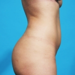 liposuction-before-picture-lateral