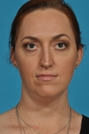 rhinoplasty-before-picture-frontview-dallas