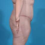 tummy-tuck-after-surgery-sideview-dallas