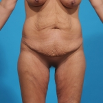 tummy-tuck-before-picture-frontview-dallas