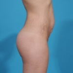 tummy-tuck-before-picture-sideview-dallas