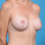 breast-lift-augmentation-after-oblique