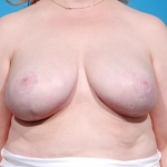 breast-reconstruction-revision-after-picture-dallas