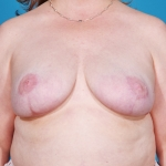 breast-reconstruction-revision-before-picture-plano
