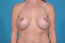 Breast revision pre front