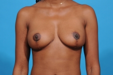 breast-reduction-frontview-after-picture-dallas
