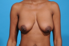 breast-reduction-frontview-before-picture-dallas