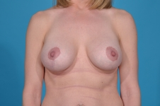 breast-revision-after-picture-dallas-frontview