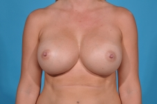 breast-revision-after-picture- frontview