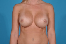 breast-revision-before-picture- frontview- dallas