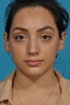 rhinoplasty-before-picture -frontview-dallas