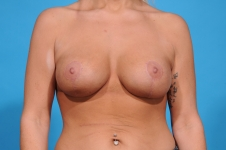 breast-implants-frontview-after-picture-dallas