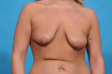 breast-implants-frontview-before-picture-dallas