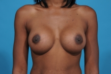 breast-augmentation-after-pic