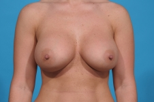 breast-augmentation-after-pic-dallas
