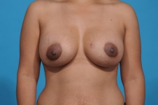 breast-augmentation-after-picture-dallas