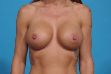 breast-augmentation-after-picture-dallas-front
