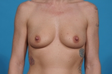 breast- augmentation-before-front