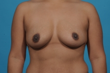breast-augmentation-before-picture