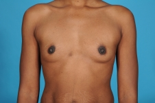 breast-augmentation-before-picture-front